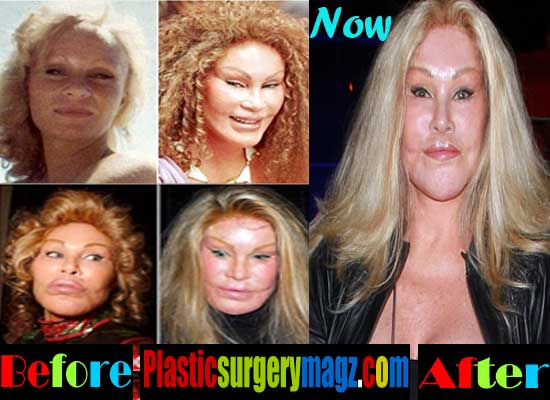 Catwoman Plastic Surgery Before and After Pictures