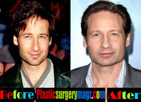 David Duchovny Plastic Surgery Before and After Photos