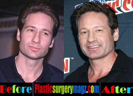 David Duchovny Plastic Surgery Pictures