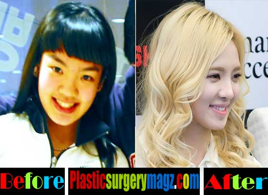 Hyoyeon SNSD Plastic Surgery Before and After