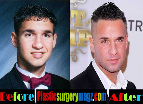 Mike the Situation Plastic Surgery Nose
