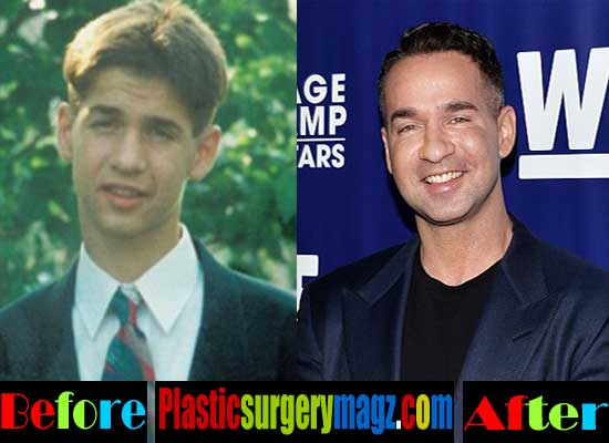 Mike the Situation Plastic Surgery Pictures