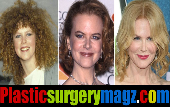 Nicole Kidman Plastic Surgery Before and After Pictures