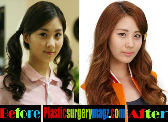 Seohyun Girls Generation Plastic Surgery Before and After