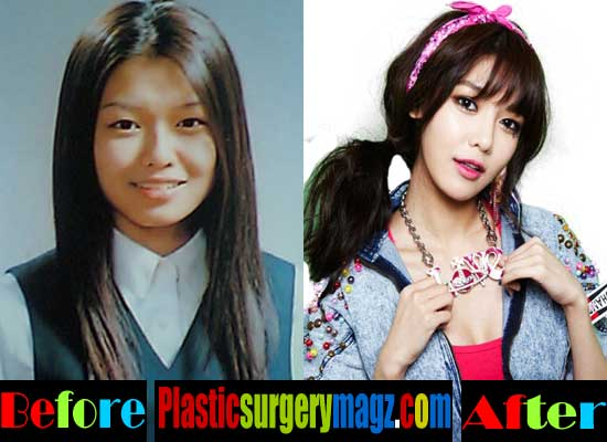 Sooyoung Girls Generation Plastic Surgery Before and After
