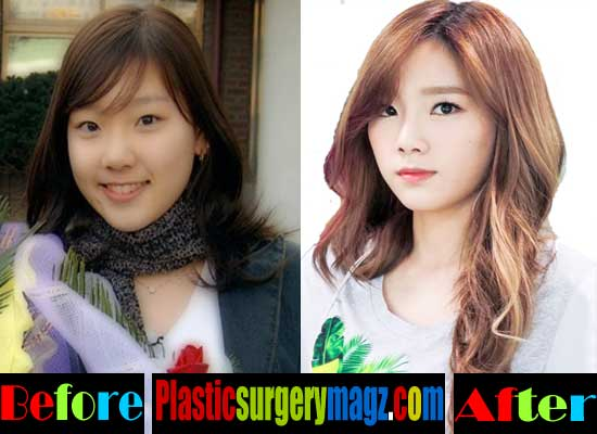 Taeyeon Girls Generation Plastic Surgery Before and After