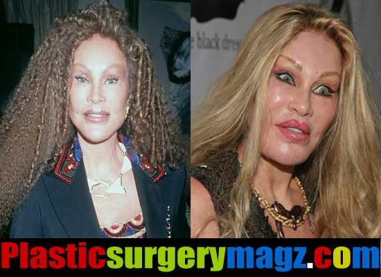 The Catwoman Plastic Surgery Pictures
