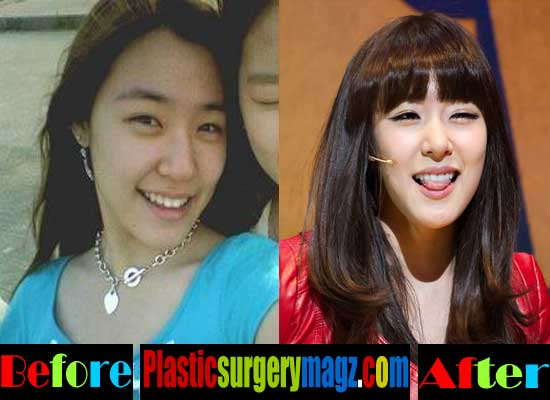 Tiffany Girls Generation Plastic Surgery Before and After