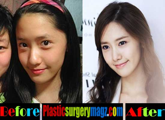 Yoona Girls Generation Plastic Surgery Before and After