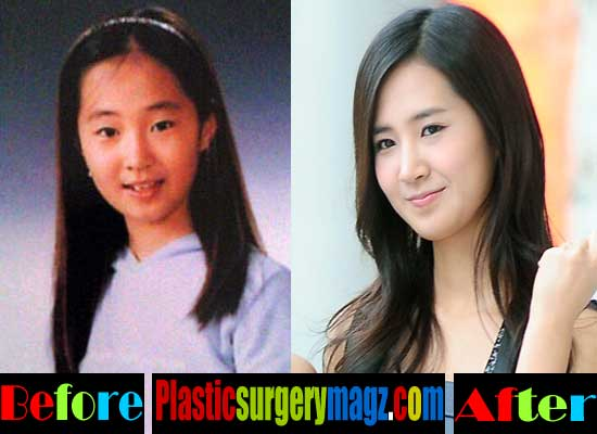 Yuri Girls Generation Plastic Surgery Before and After