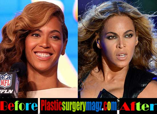 Beyonce Nose Job Before and After Pictures