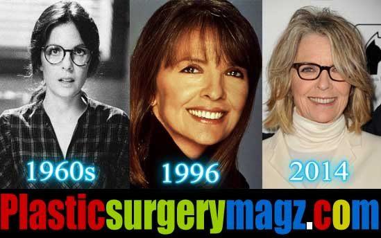 Diane Keaton Before and After Plastic Surgery Photos