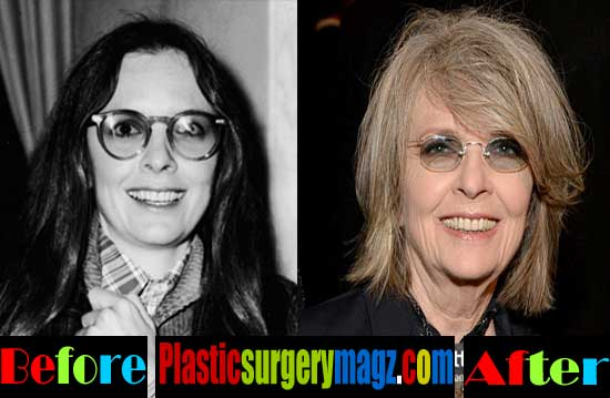 Diane Keaton Plastic Surgery Before and After