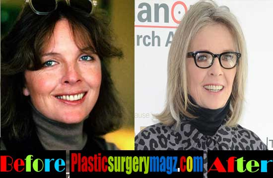 Diane Keaton Plastic Surgery Facelift and Botox
