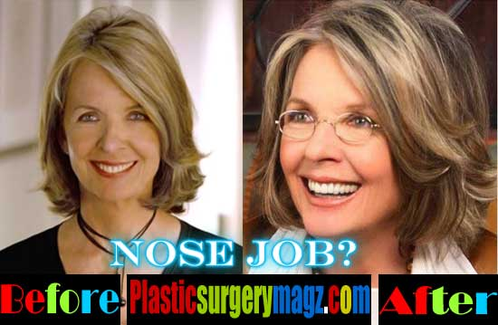 Diane Keaton Plastic Surgery Nose Job