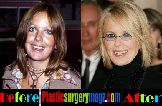 Diane Keaton Plastic Surgery Photos