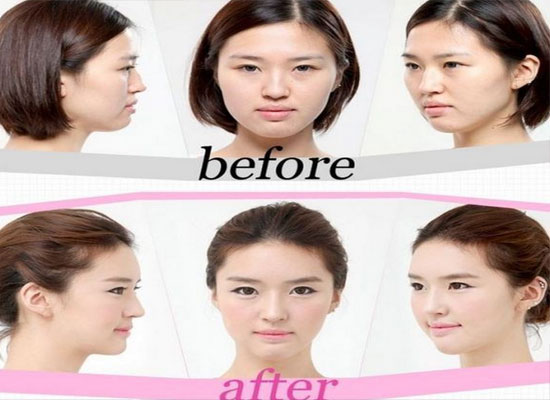 Good Korean Plastic Surgery Before And After