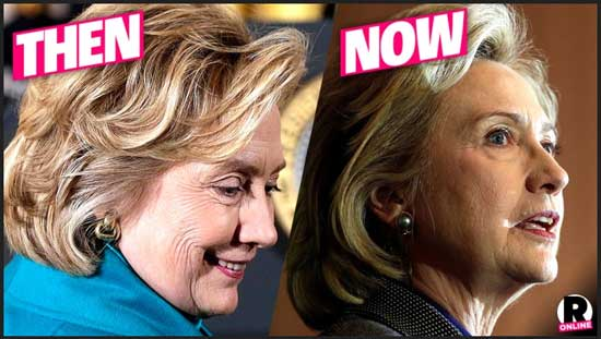 Hillary Clinton Facelift Before and After Pictures
