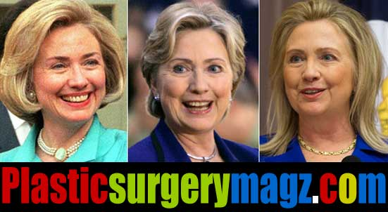 Hillary Clinton Facelift Pictures