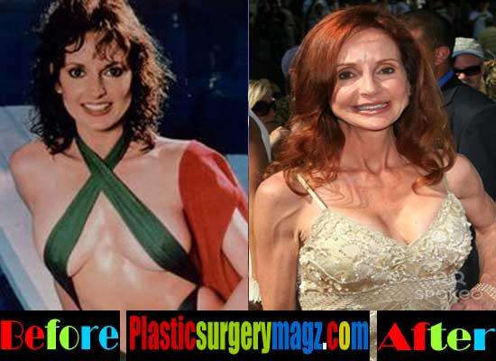 Jackie Zeman Plastic Surgery Breast Implant
