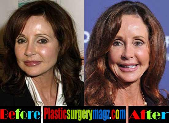 Jackie Zeman Plastic Surgery Pictures