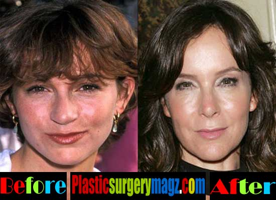 Jennifer Grey Plastic Surgery Before After Nose Job