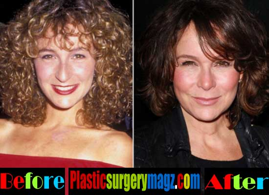 Jennifer Grey Plastic Surgery Before After