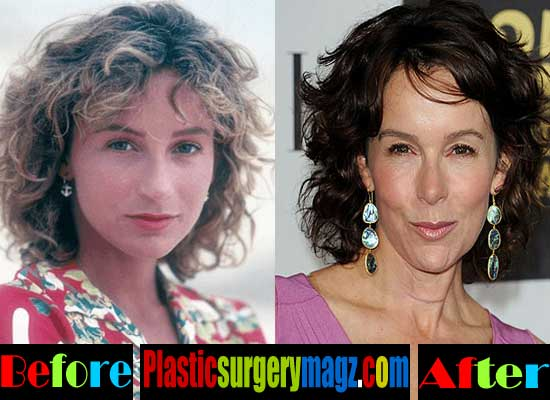 Jennifer Grey Plastic Surgery Photos
