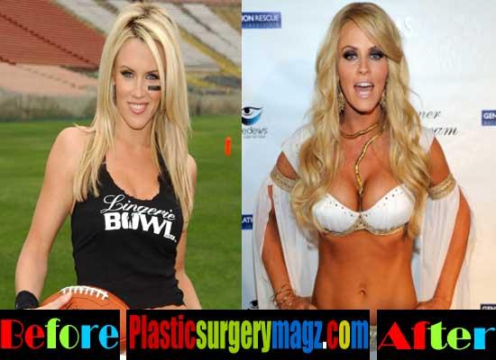 Jenny Mccarthy Plastic Surgery Boob Job