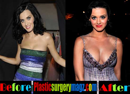 Katy Perry Breast Implants Before and After