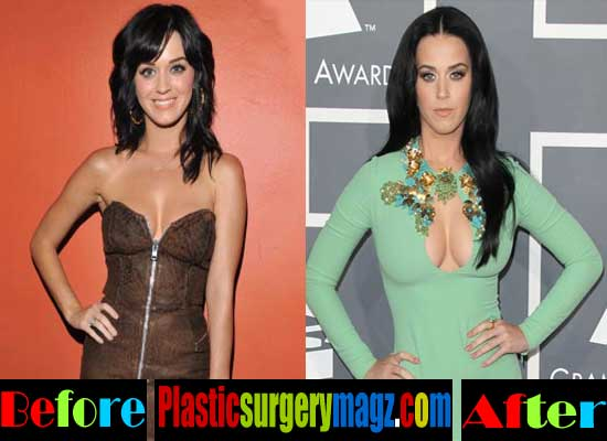 Katy Perry Breast Implants Boobs Job Pictures