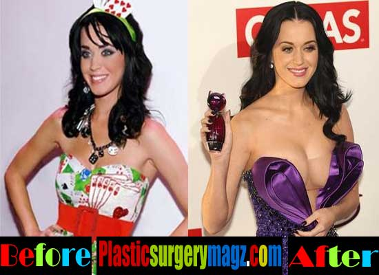 Are katy perrys boobs real