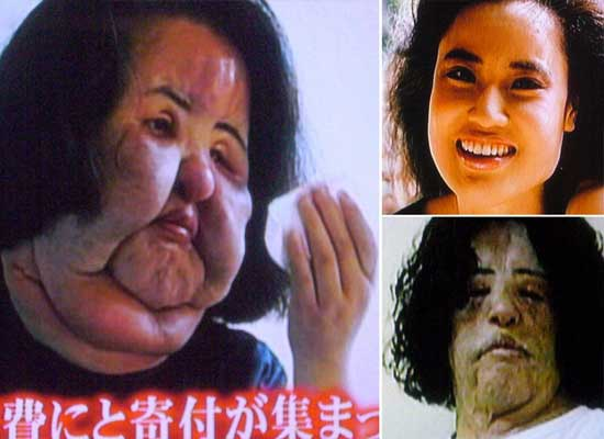 Korean Plastic Surgery Gone Wrong Before and After