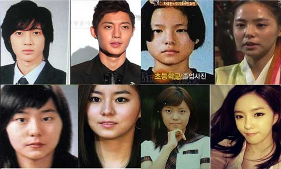 Korean Plastic Surgery Before And After You Should Look