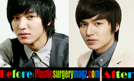Lee Min Ho Plastic Surgery Eyes