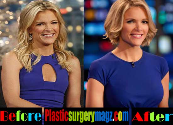 Megyn Kelly Plastic Surgery Boob Job