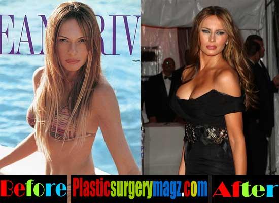 Melania Trump Plastic Surgery Boob Job