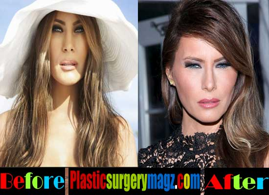Melania Trump Plastic Surgery Nose Job
