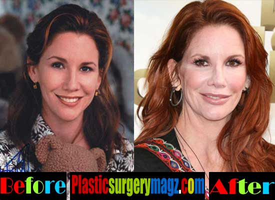 Melissa Gilbert Plastic Surgery Before and After Botox
