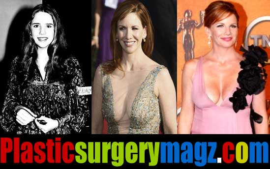 Melissa Gilbert Plastic Surgery Breast Implant Removal