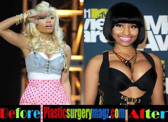 Nicki Minaj Before and After Breast Implants
