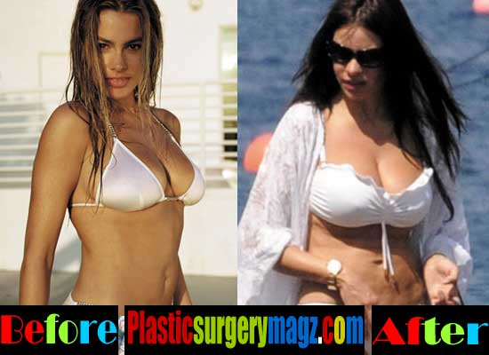 Sofia Vergara Plastic Surgery Tummy Tuck