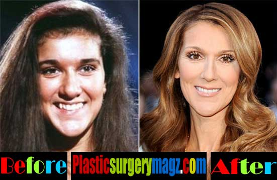 Celine Dion Before and After Plastic Surgery