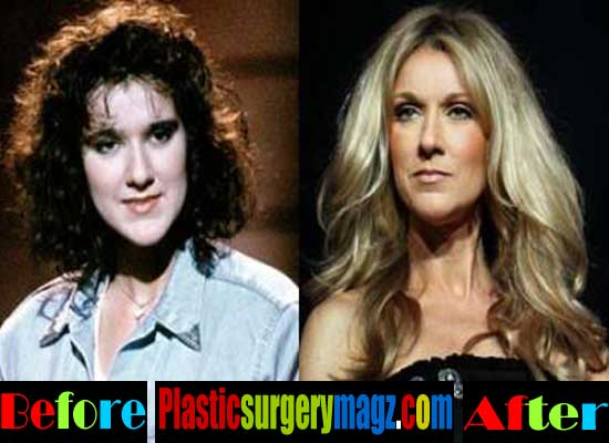 Celine Dion Plastic Surgery Before and After