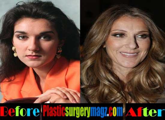 Celine Dion Plastic Surgery Pictures