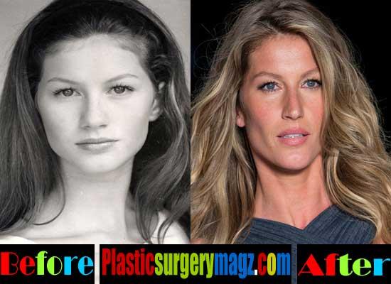 Gisele Bundchen Plastic Surgery Nose Job