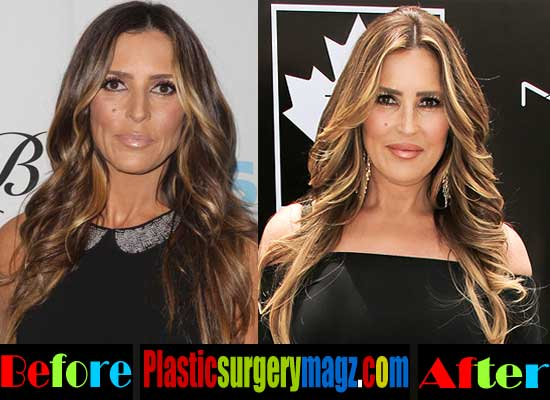 Jillian Barberie Plastic Surgery Before and After