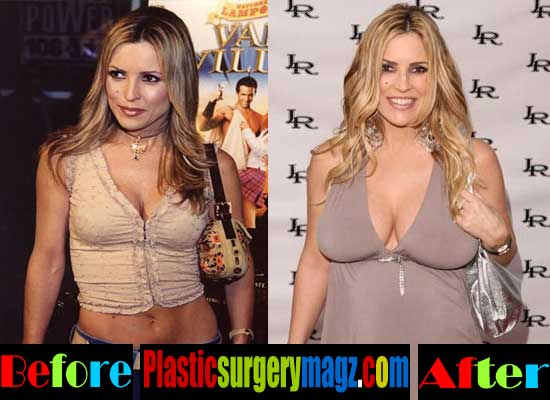 Jillian Barberie Plastic Surgery Boob Job