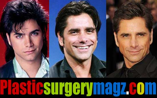 John Stamos Plastic Surgery Before and After Pictures