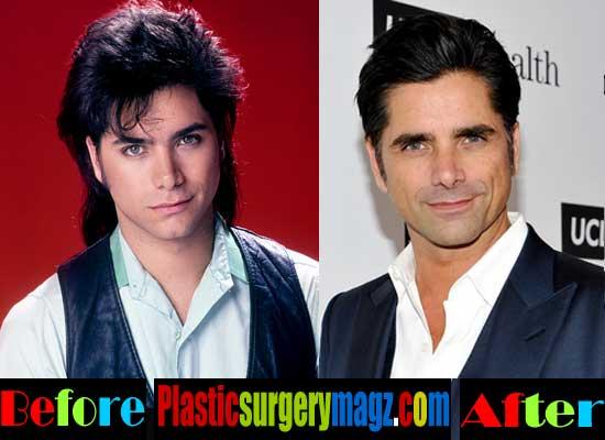 John Stamos Plastic Surgery Face